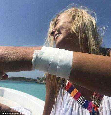 Инстаграм-модель полезла в заводь с акулами ради лайков и чуть не лишилась руки